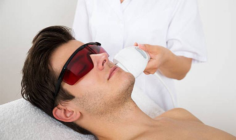 laser hair removal suitable men